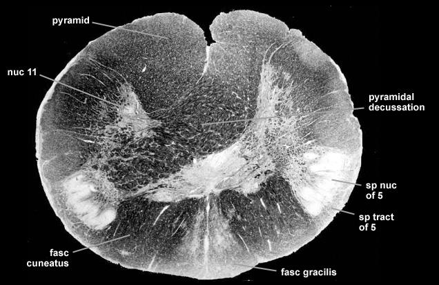 Neuroanatomy Brainstemsections
